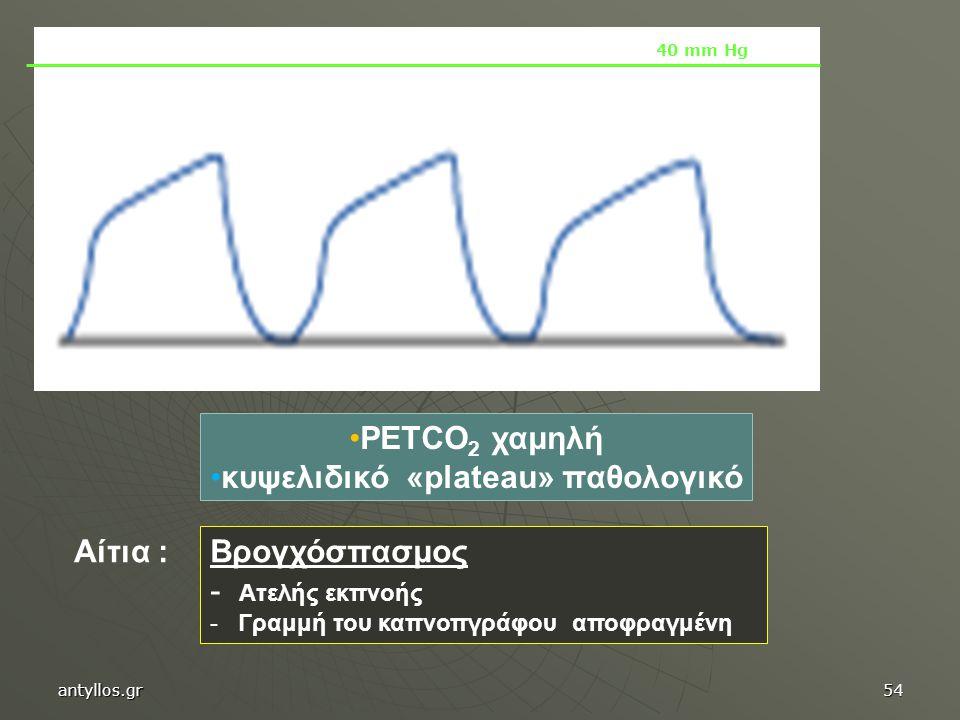 PETCO 2 χαμηλή κυψελιδικό «plateau» παθολογικό Βρογχόσπασμος - Ατελής εκπνοής - Γραμμή του καπνοπγράφου αποφραγμένη Αίτια : 40 mm Hg antyllos.gr54