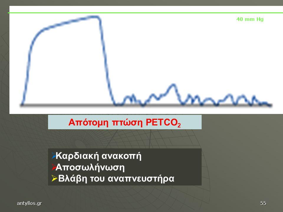 Απότομη πτώση PETCO 2  Καρδιακή ανακοπή  Αποσωλήνωση  Βλάβη του αναπνευστήρα 40 mm Hg antyllos.gr55