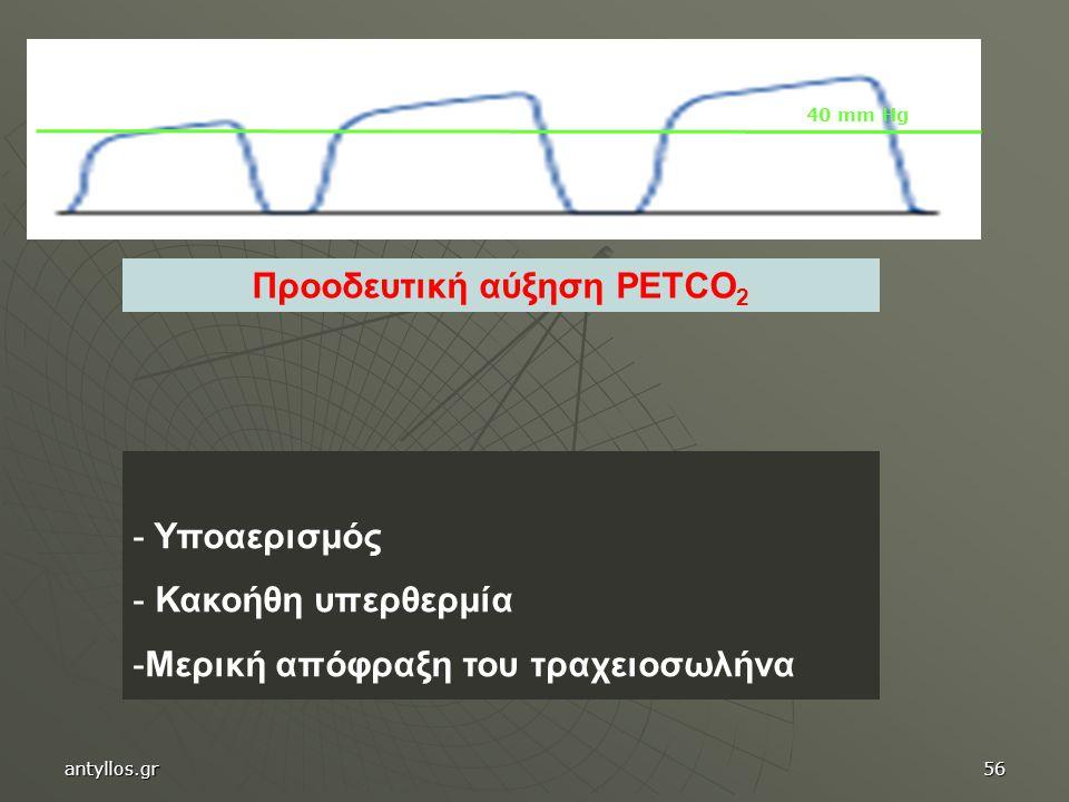 Προοδευτική αύξηση PETCO 2 - Υποαερισμός - Κακοήθη υπερθερμία -Μερική απόφραξη του τραχειοσωλήνα 40 mm Hg antyllos.gr56