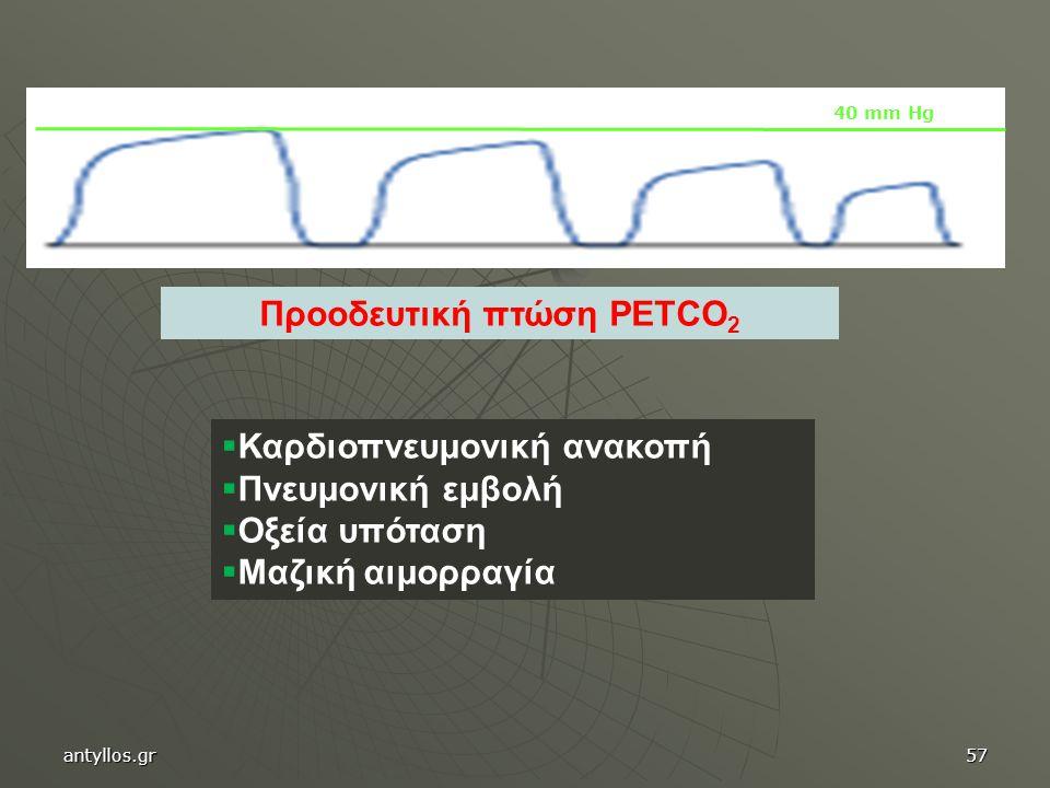 Προοδευτική πτώση PETCO 2  Καρδιοπνευμονική ανακοπή  Πνευμονική εμβολή  Οξεία υπόταση  Μαζική αιμορραγία 40 mm Hg antyllos.gr57