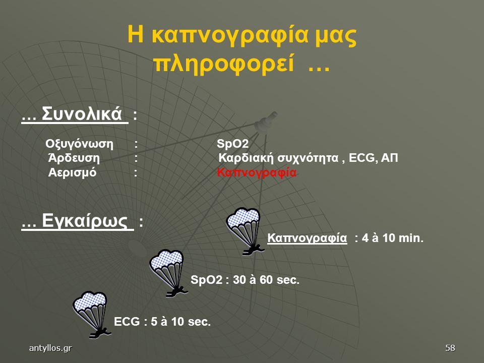 Καπνογραφία : 4 à 10 min. … Συνολικά : Οξυγόνωση : SpO2 Άρδευση : Καρδιακή συχνότητα, ECG, ΑΠ Αερισμό : Καπνογραφία … Εγκαίρως : SpO2 : 30 à 60 sec.EC