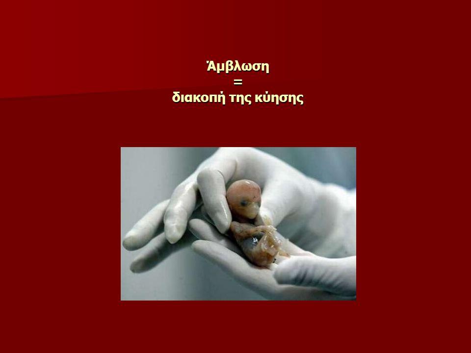 Άμβλωση = διακοπή της κύησης