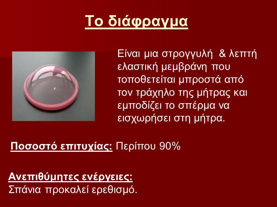 Το διάφραγμα Είναι μια στρογγυλή & λεπτή ελαστική μεμβράνη που τοποθετείται μπροστά από τον τράχηλο της μήτρας και εμποδίζει το σπέρμα να εισχωρήσει σ