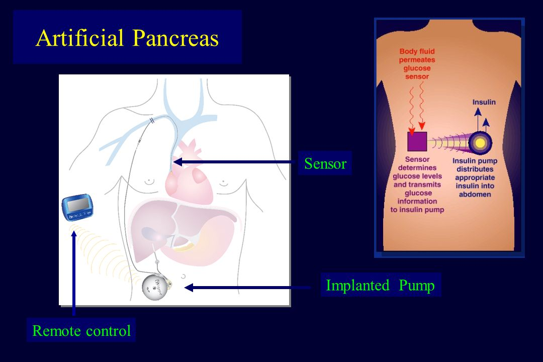 Artificial Pancreas Remote control Implanted Pump Sensor