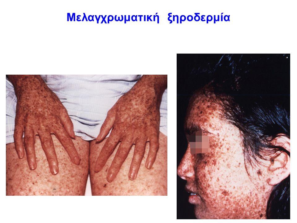 συμπέρασμα Ο καρκίνος οφείλεται σε σωματικές μεταλλάξεις που προκαλούνται από μεταλλαξογόνους παράγοντες του περιβάλλοντος, άρα κατά βάση δεν κληρονομείται.