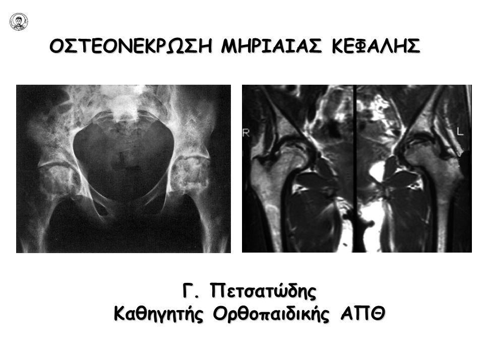 ΟΣΤΕΟΝΕΚΡΩΣΗ ΜΗΡΙΑΙΑΣ ΚΕΦΑΛΗΣ  Διαταραχή αιμάτωσης υποχόνδριου οστού υποχόνδριου οστού  Νέκρωση κεφαλής  Δευτεροπαθής ΟΑ