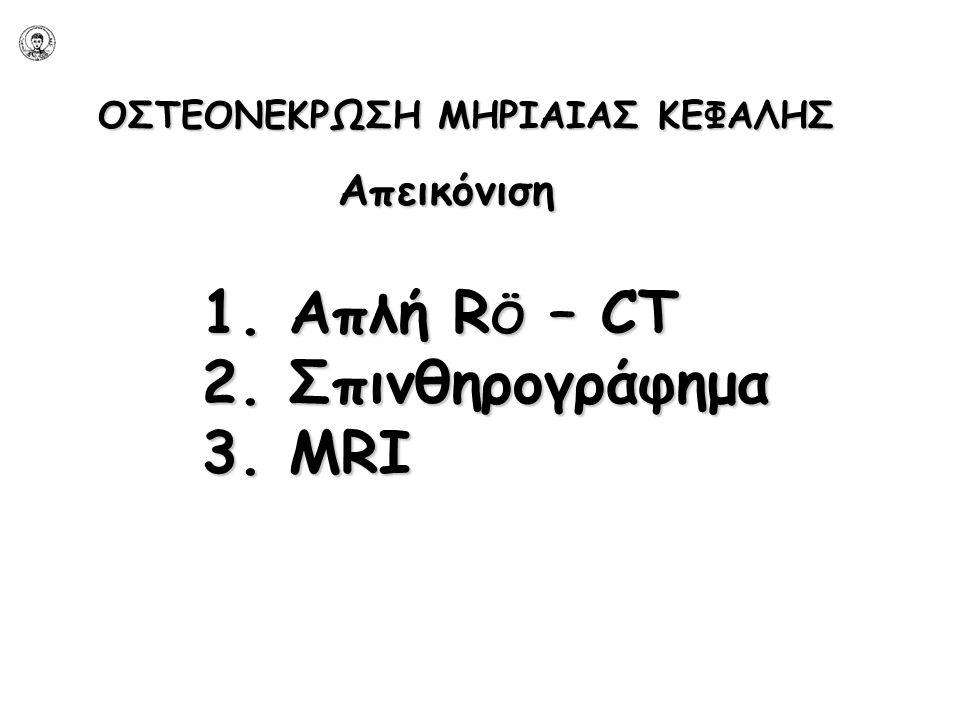 ΟΣΤΕΟΝΕΚΡΩΣΗ ΜΗΡΙΑΙΑΣ ΚΕΦΑΛΗΣ 1. Απλή R Ö – CT 2. Σπινθηρογράφημα 3. MRI Απεικόνιση