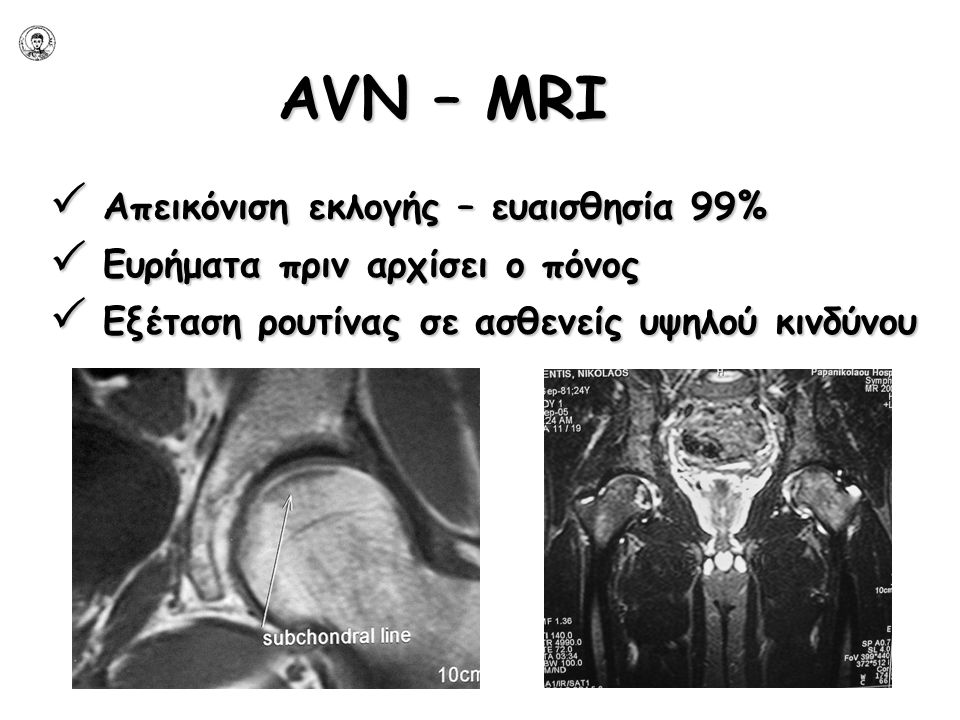 AVN – ΜRI  Απεικόνιση εκλογής – ευαισθησία 99%  Ευρήματα πριν αρχίσει ο πόνος  Εξέταση ρουτίνας σε ασθενείς υψηλού κινδύνου