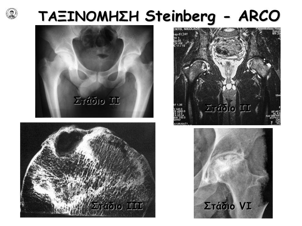 ΤΑΞΙΝΟΜΗΣΗ Steinberg - ARCO Στάδιο IΙ Στάδιο IΙI Στάδιο VI