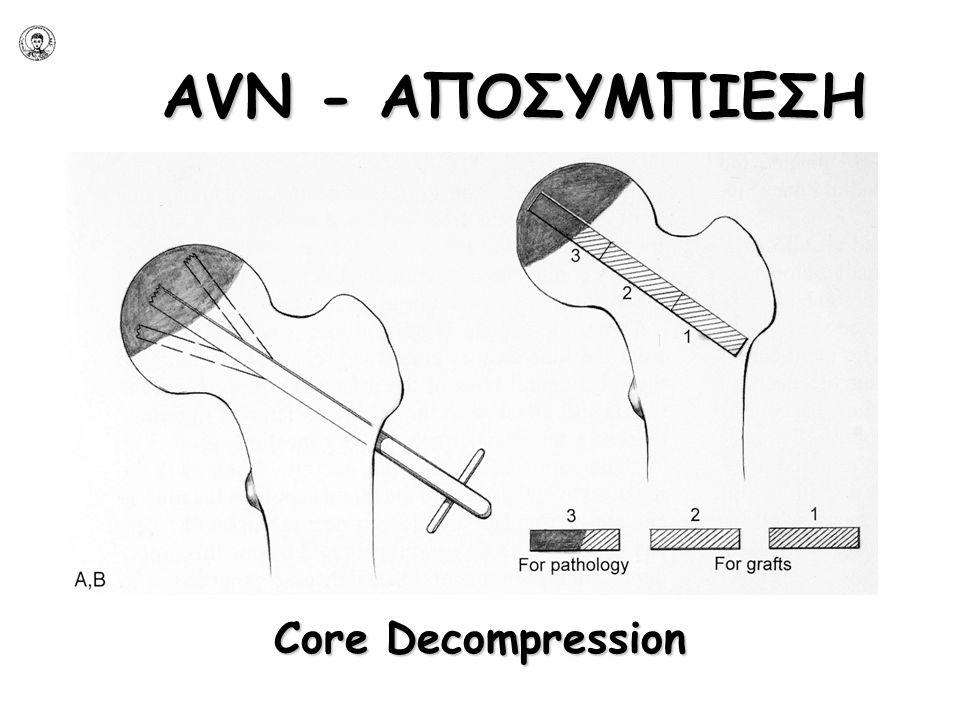 AVN - ΑΠΟΣΥΜΠΙΕΣΗ Core Decompression