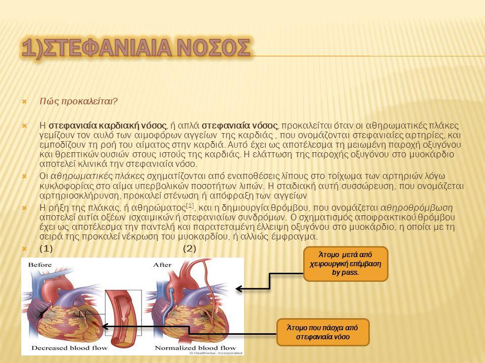  1) Στεφανιαία νόσος  2) Αγγειακό εγκεφαλικό επεισόδιο  3) Ρευματική καρδιοπάθεια  4) Συγγενής Καρδιοπάθεια  5) Ανευρύσματα και διαχωρισμός αορτή