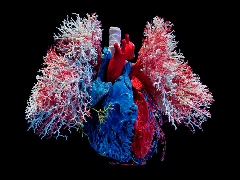 http://www.wikidoc.org/index.php/ST_elevation_myocardial_infarction_gross_pathology