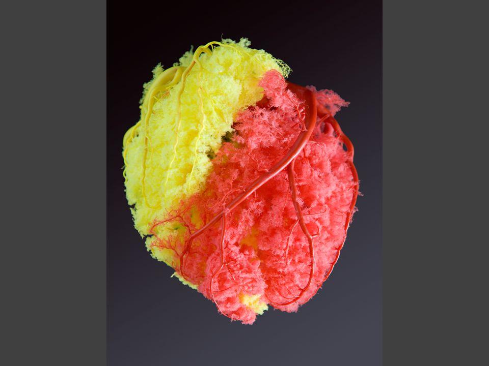 αορτή (εξερχομένη από την καρδιά) θωρακική αορτή κοιλιακή αορτή νεφρική αρτηρία ανεύρυσμα θωρακικής αορτής ανεύρυσμα κοιλιακής αορτής    εγκέφαλος εγκεφαλικό ανεύρυσμα εγκεφαλικές αρτηρίες