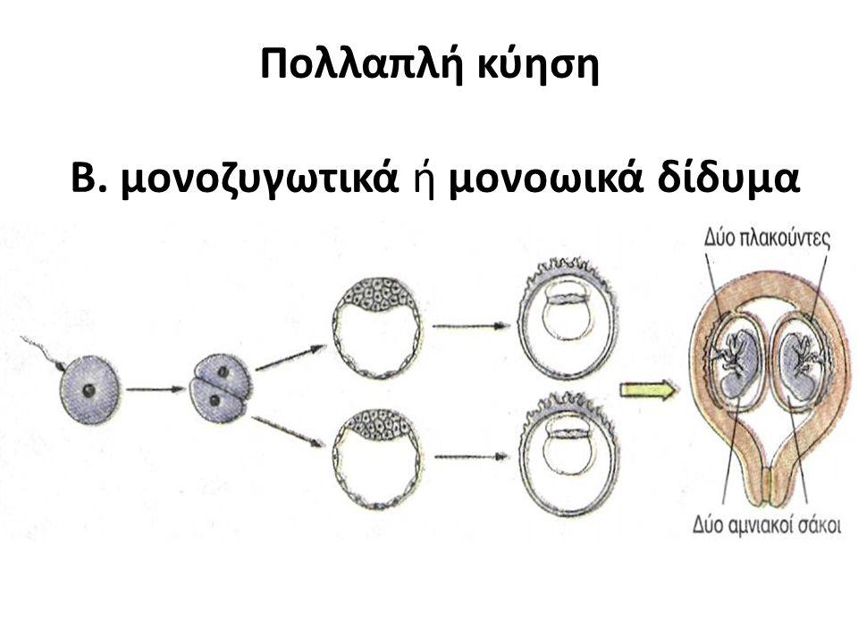 Πολλαπλή κύηση Β. μονοζυγωτικά ή μονοωικά δίδυμα