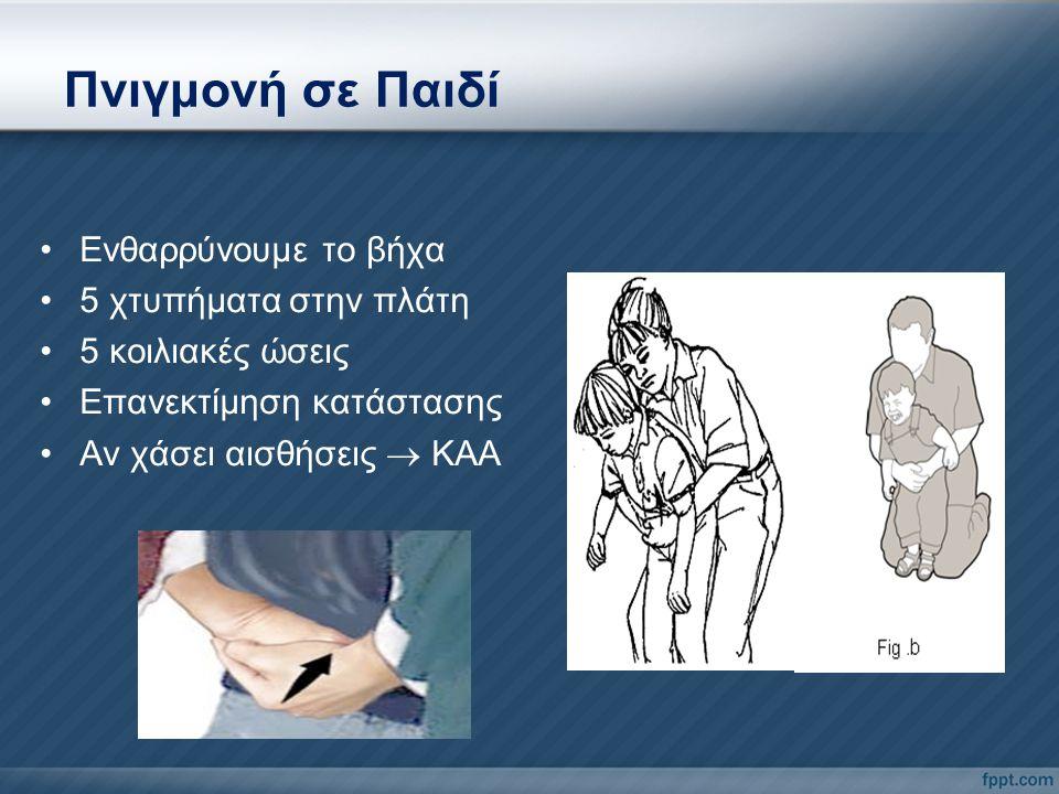 Πνιγμονή σε Παιδί Ενθαρρύνουμε το βήχα 5 χτυπήματα στην πλάτη 5 κοιλιακές ώσεις Επανεκτίμηση κατάστασης Αν χάσει αισθήσεις  ΚΑΑ