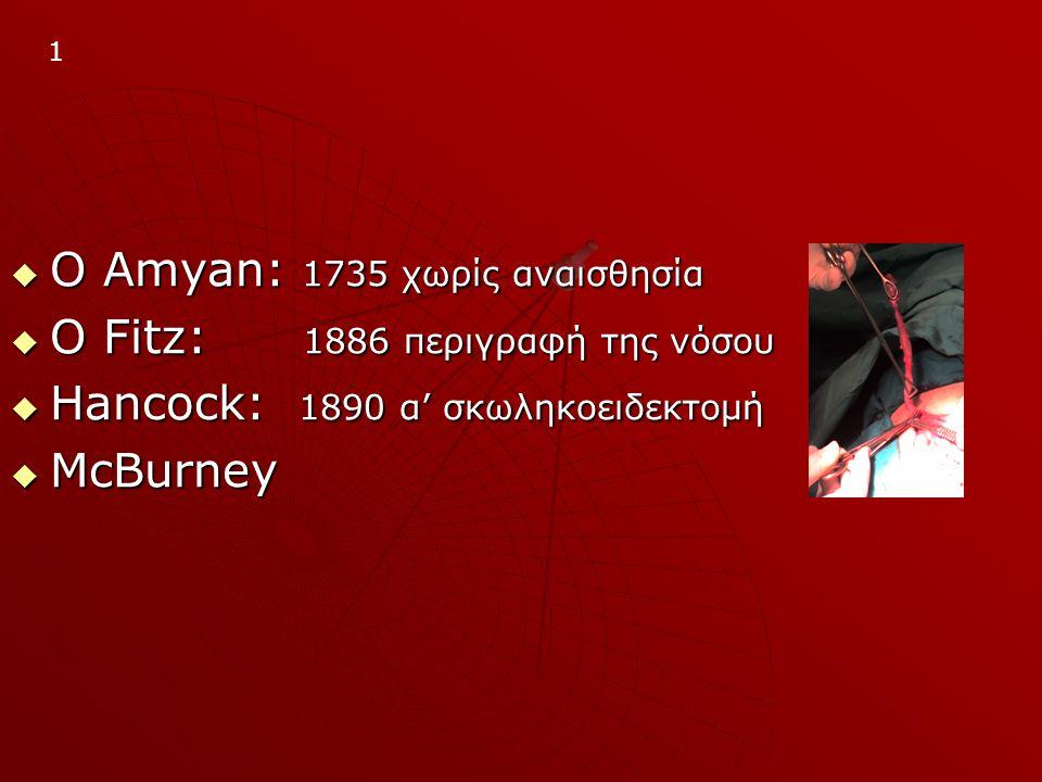  Ο Amyan: 1735 χωρίς αναισθησία  Ο Fitz: 1886 περιγραφή της νόσου  Ηancock: 1890 α' σκωληκοειδεκτομή  ΜcBurney 1