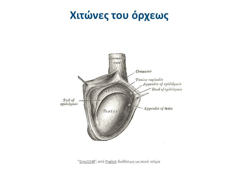 Ανοσολογικός παράγοντας 3/3 Ως εκλυτικοί παράγοντες για το σχηματισμό αντισωμάτων έναντι των σπερματοζωαρίων δρουν ορισμένες καταστάσεις όπως: o Απόφραξη των αποχετευτικών οδών του σπέρματος.