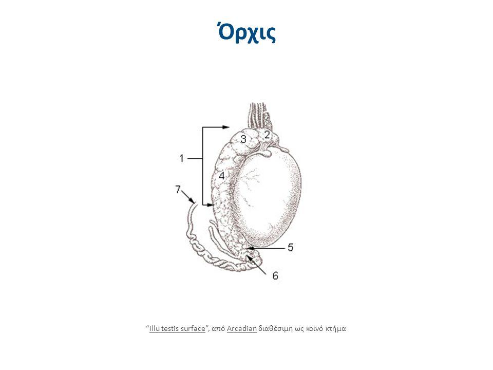 Πολυκυστικές ωοθήκες 2/2 PCO polycystic ovary , από Jelee διαθέσιμο με άδεια CC BY-SA 3.0PCO polycystic ovaryJeleeCC BY-SA 3.0