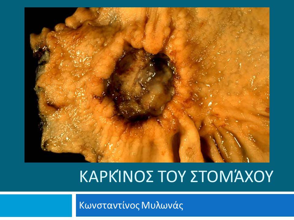 ΚΑΡΚΊΝΟΣ ΤΟΥ ΣΤΟΜΆΧΟΥ Κωνσταντίνος Μυλωνάς