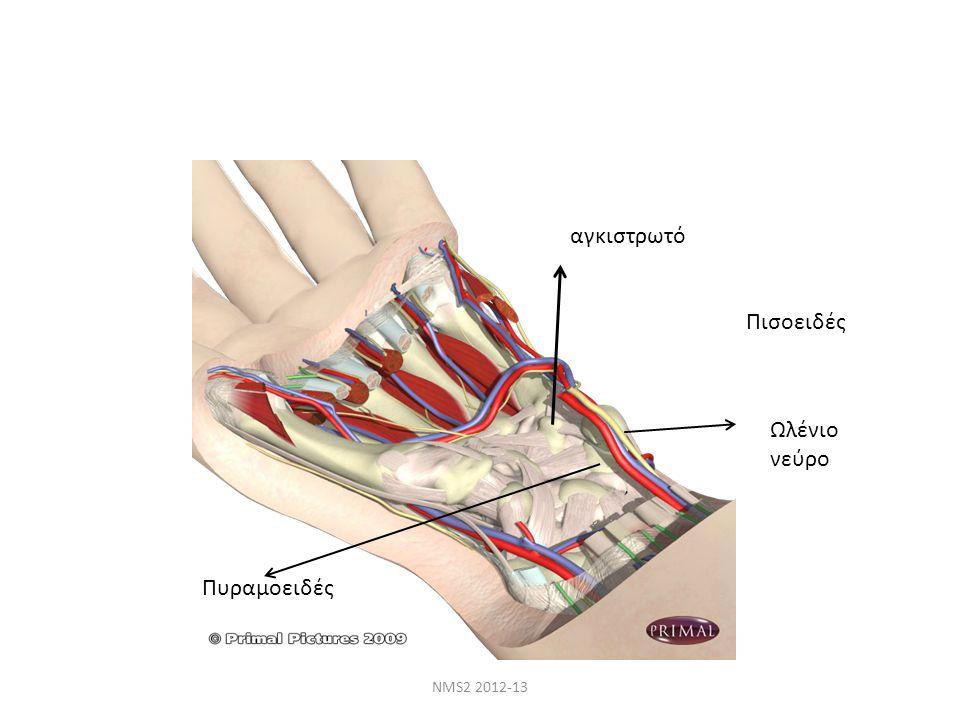 NMS2 2012-13 αγκιστρωτό Πυραμοειδές Πισοειδές Ωλένιο νεύρο
