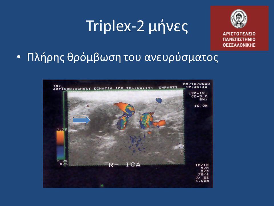 Triplex-2 μήνες Πλήρης θρόμβωση του ανευρύσματος