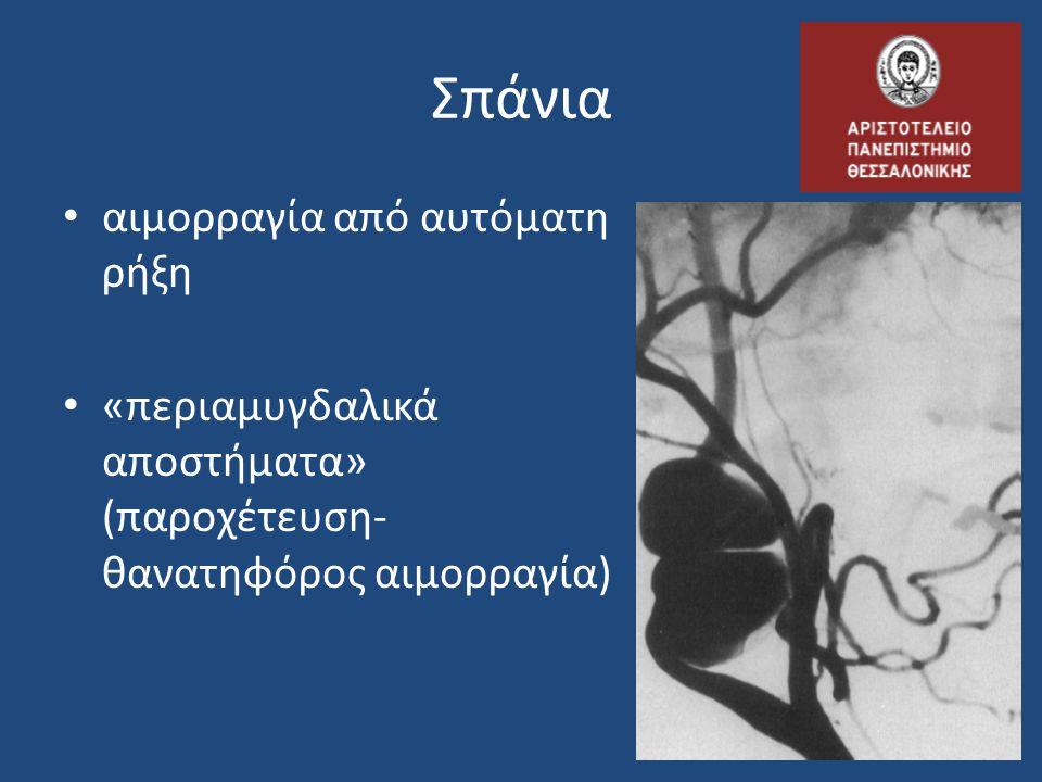 Σπάνια αιμορραγία από αυτόματη ρήξη «περιαμυγδαλικά αποστήματα» (παροχέτευση- θανατηφόρος αιμορραγία)