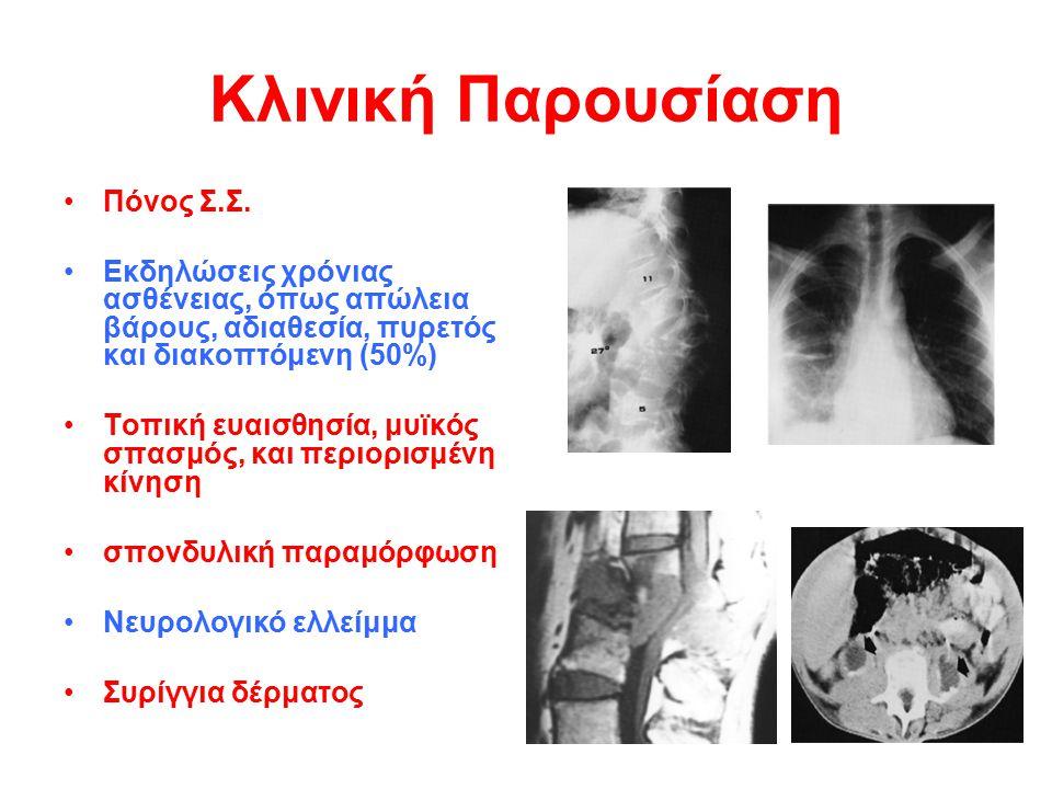 Κλινική Παρουσίαση Πόνος Σ.Σ. Εκδηλώσεις χρόνιας ασθένειας, όπως απώλεια βάρους, αδιαθεσία, πυρετός και διακοπτόμενη (50%) Τοπική ευαισθησία, μυϊκός σ