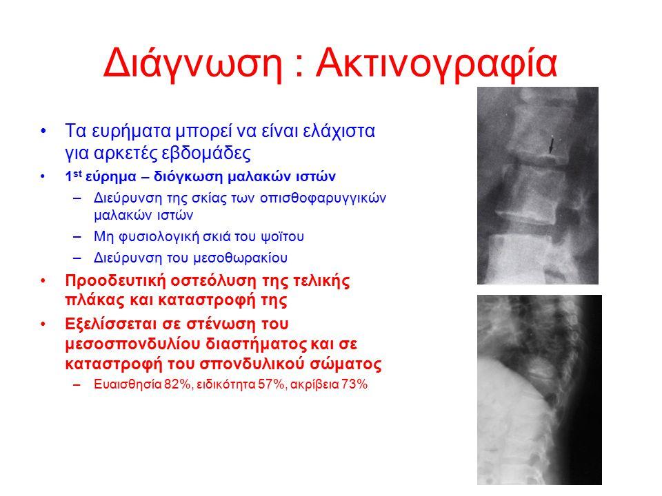 Διάγνωση : Ακτινογραφία Τα ευρήματα μπορεί να είναι ελάχιστα για αρκετές εβδομάδες 1 st εύρημα – διόγκωση μαλακών ιστών –Διεύρυνση της σκίας των οπισθ