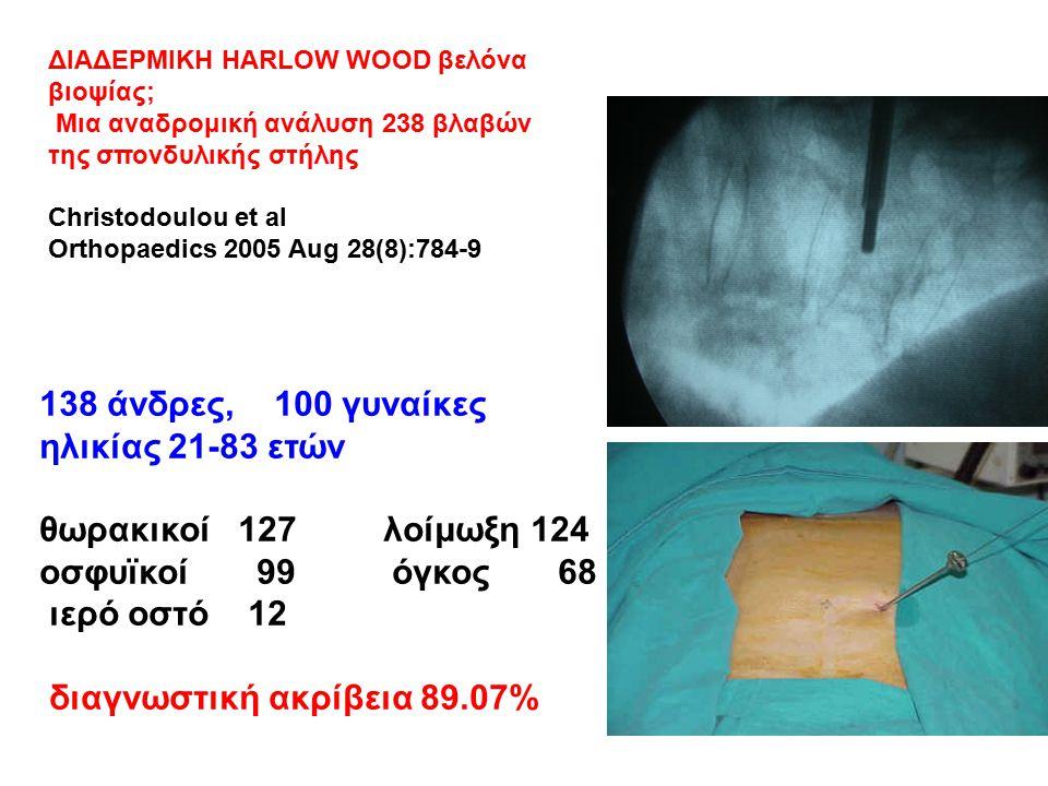 ΔΙΑΔΕΡΜΙΚΗ HARLOW WOOD βελόνα βιοψίας; Μια αναδρομική ανάλυση 238 βλαβών της σπονδυλικής στήλης Christodoulou et al Orthopaedics 2005 Aug 28(8):784-9