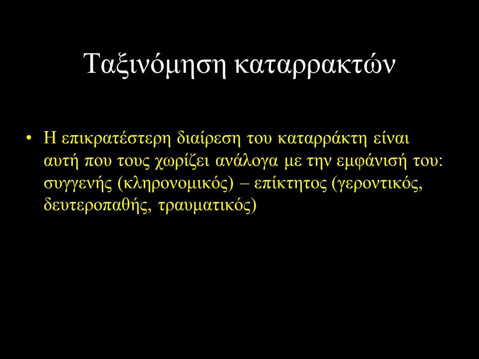 Ταξινόμηση καταρρακτών Η επικρατέστερη διαίρεση του καταρράκτη είναι αυτή που τους χωρίζει ανάλογα με την εμφάνισή του: συγγενής (κληρονομικός) – επίκ