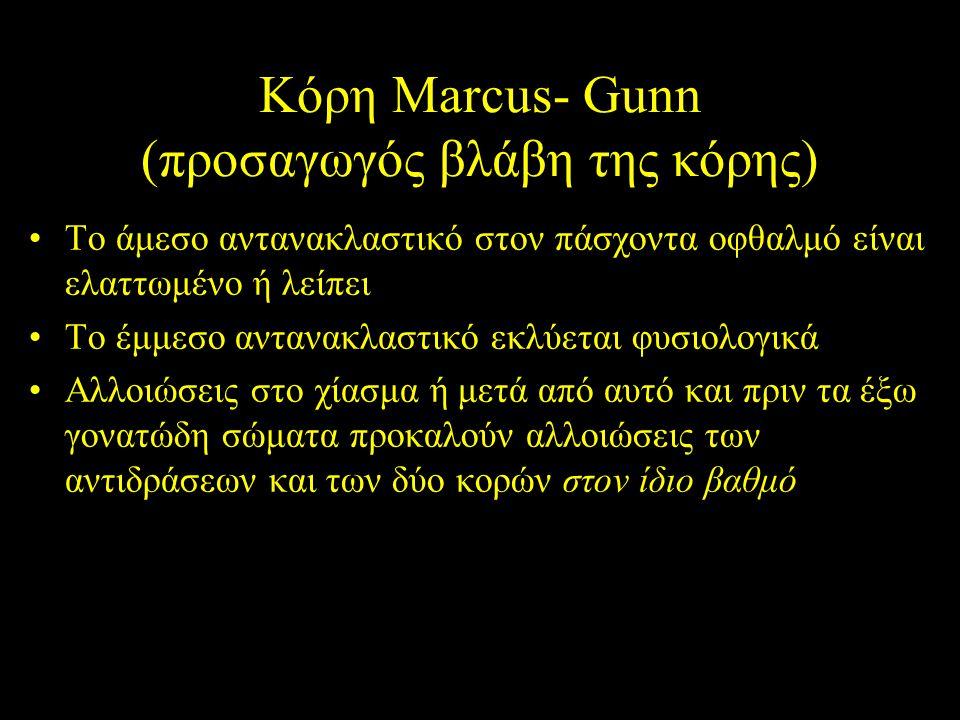 Κόρη Marcus- Gunn (προσαγωγός βλάβη της κόρης) Το άμεσο αντανακλαστικό στον πάσχοντα οφθαλμό είναι ελαττωμένο ή λείπει Το έμμεσο αντανακλαστικό εκλύετ