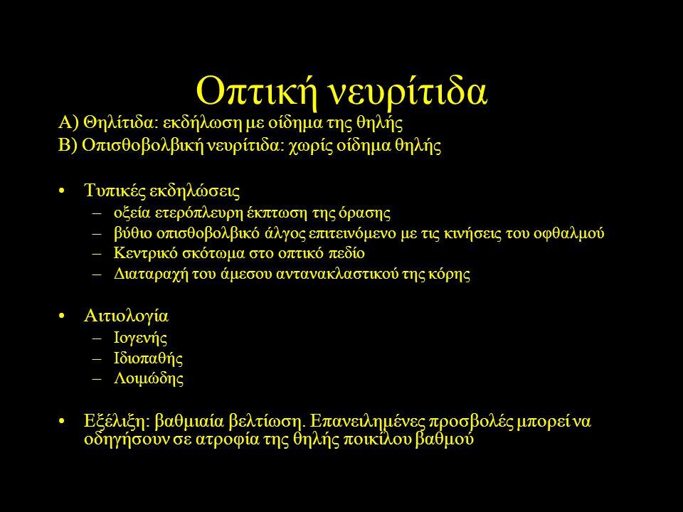 Οπτική νευρίτιδα Α) Θηλίτιδα: εκδήλωση με οίδημα της θηλής Β) Οπισθοβολβική νευρίτιδα: χωρίς οίδημα θηλής Τυπικές εκδηλώσεις –οξεία ετερόπλευρη έκπτωσ