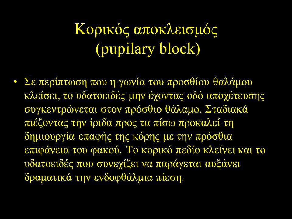 Κορικός αποκλεισμός (pupilary block) Σε περίπτωση που η γωνία του προσθίου θαλάμου κλείσει, το υδατοειδές μην έχοντας οδό αποχέτευσης συγκεντρώνεται σ