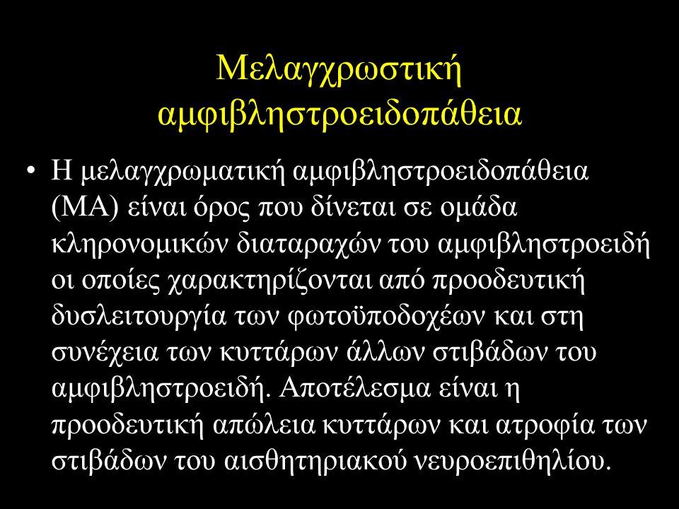 Μελαγχρωστική αμφιβληστροειδοπάθεια Η μελαγχρωματική αμφιβληστροειδοπάθεια (ΜΑ) είναι όρος που δίνεται σε ομάδα κληρονομικών διαταραχών του αμφιβληστρ