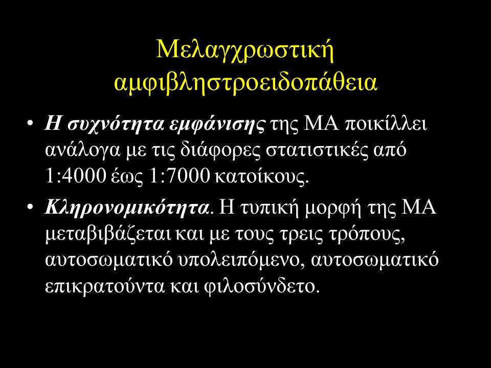 Μελαγχρωστική αμφιβληστροειδοπάθεια Η συχνότητα εμφάνισης της ΜΑ ποικίλλει ανάλογα με τις διάφορες στατιστικές από 1:4000 έως 1:7000 κατοίκους. Κληρον