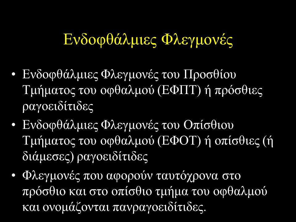 Ενδοφθάλμιες Φλεγμονές Ενδοφθάλμιες Φλεγμονές του Προσθίου Τμήματος του οφθαλμού (ΕΦΠΤ) ή πρόσθιες ραγοειδίτιδες Ενδοφθάλμιες Φλεγμονές του Οπίσθιου Τ