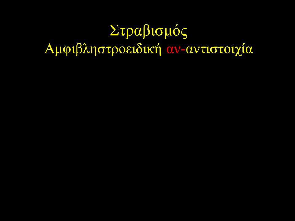 Στραβισμός Αμφιβληστροειδική αν-αντιστοιχία