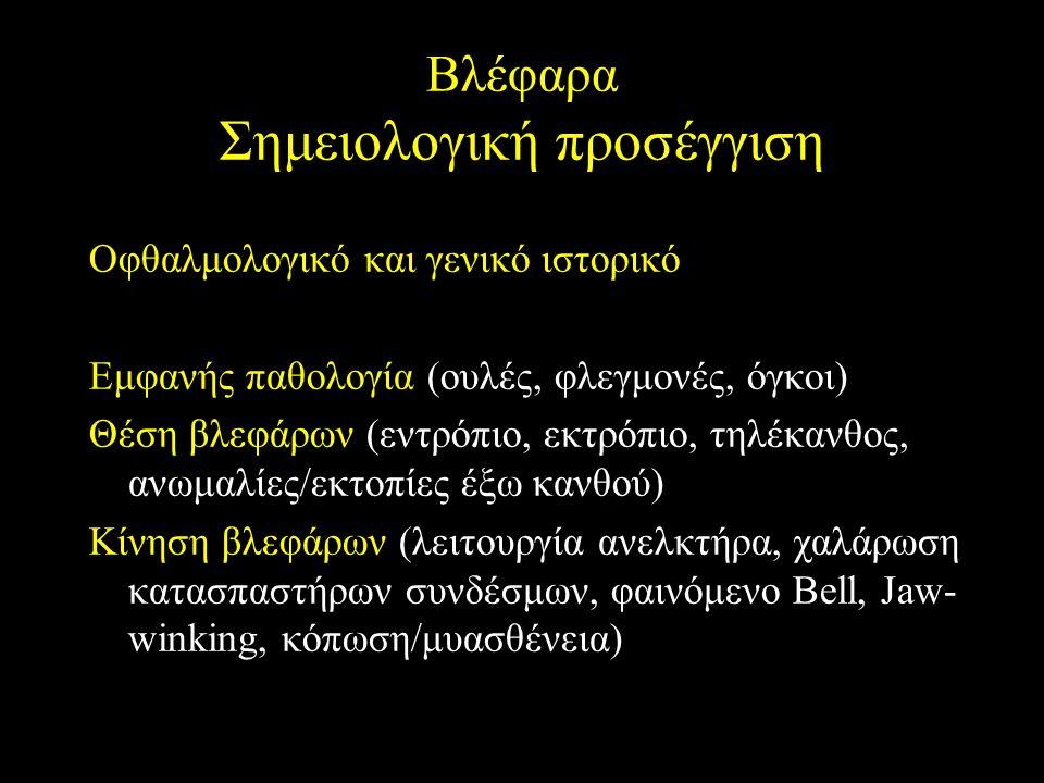 Βλέφαρα Σημειολογική προσέγγιση Οφθαλμολογικό και γενικό ιστορικό Εμφανής παθολογία (ουλές, φλεγμονές, όγκοι) Θέση βλεφάρων (εντρόπιο, εκτρόπιο, τηλέκ