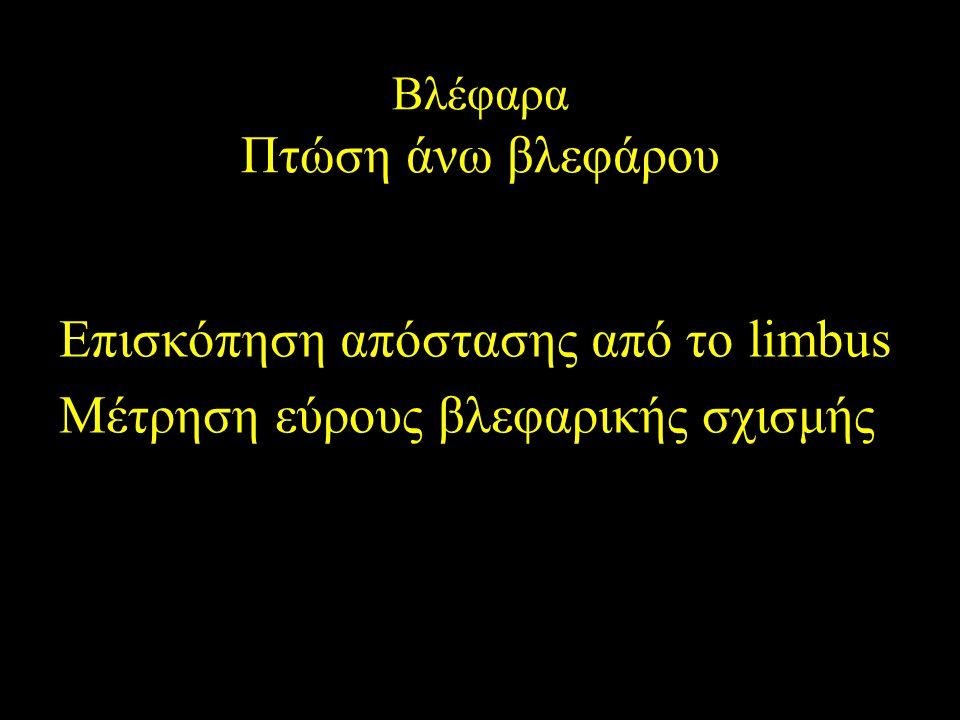 Επισκόπηση απόστασης από το limbus Μέτρηση εύρους βλεφαρικής σχισμής Βλέφαρα Πτώση άνω βλεφάρου