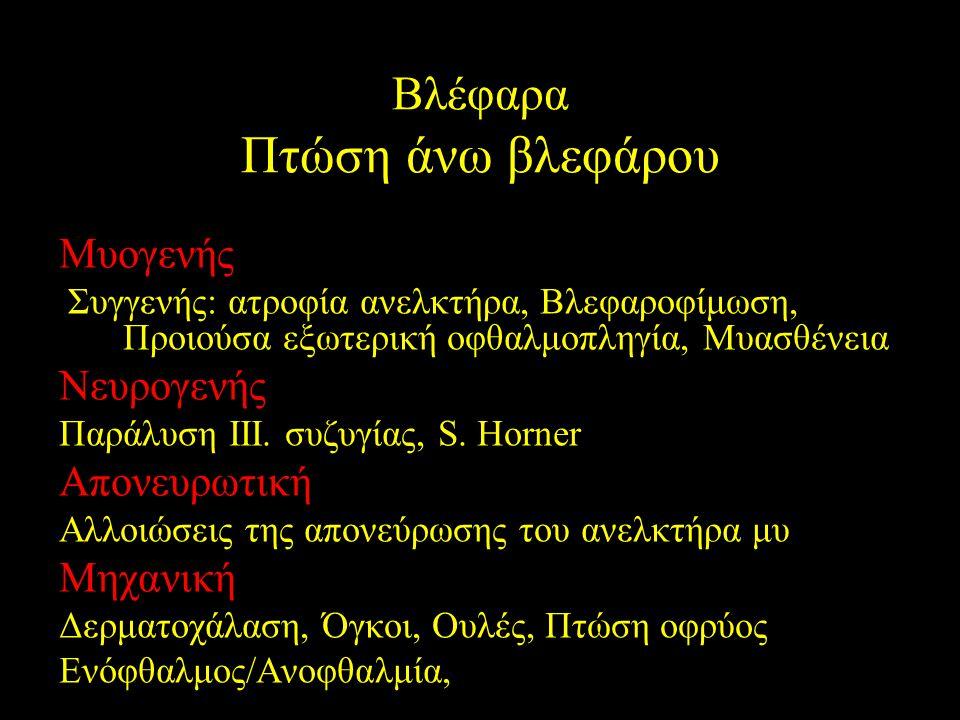 Μυογενής Συγγενής: ατροφία ανελκτήρα, Βλεφαροφίμωση, Προιούσα εξωτερική οφθαλμοπληγία, Μυασθένεια Νευρογενής Παράλυση ΙΙΙ. συζυγίας, S. Horner Απονευρ