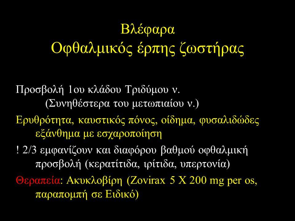 Βλέφαρα Οφθαλμικός έρπης ζωστήρας Προσβολή 1ου κλάδου Τριδύμου ν. (Συνηθέστερα του μετωπιαίου ν.) Ερυθρότητα, καυστικός πόνος, οίδημα, φυσαλιδώδες εξά
