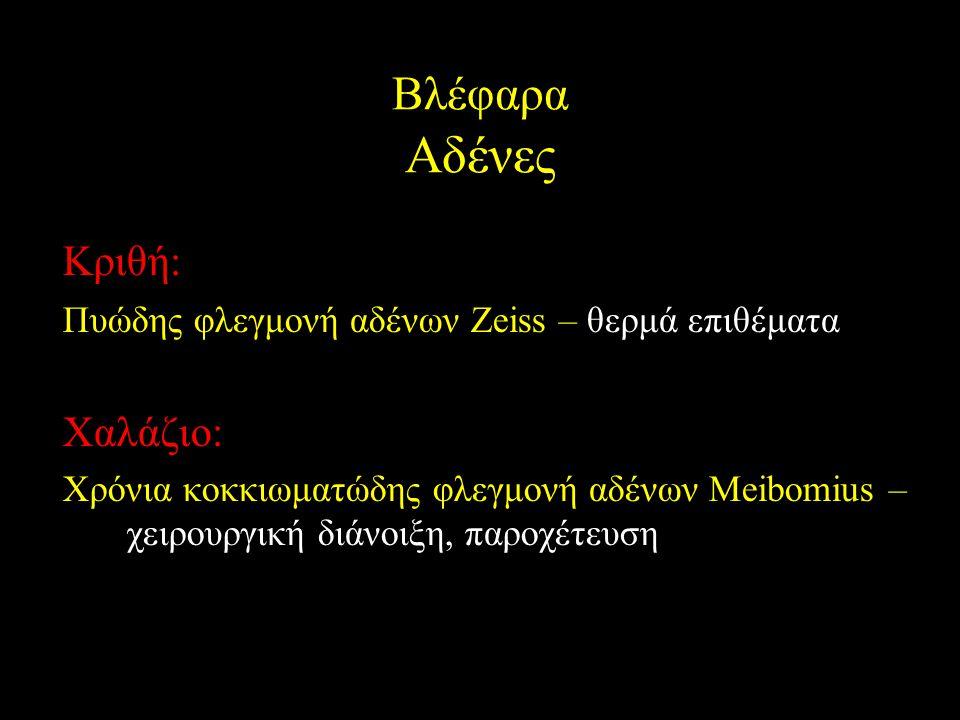 Βλέφαρα Αδένες Κριθή: Πυώδης φλεγμονή αδένων Zeiss – θερμά επιθέματα Χαλάζιο: Χρόνια κοκκιωματώδης φλεγμονή αδένων Meibomius – χειρουργική διάνοιξη, π