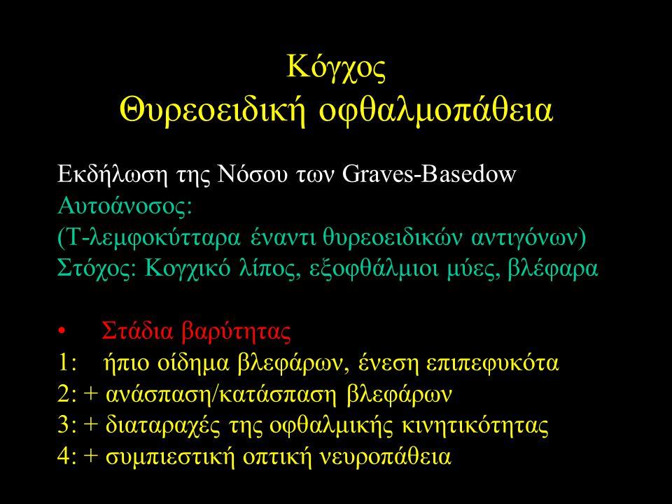 Εκδήλωση της Νόσου των Graves-Basedow Αυτοάνοσος: (Τ-λεμφοκύτταρα έναντι θυρεοειδικών αντιγόνων) Στόχος: Κογχικό λίπος, εξοφθάλμιοι μύες, βλέφαρα Στάδ