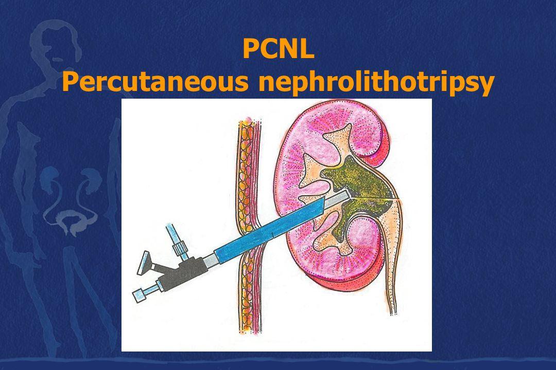 PCNL Percutaneous nephrolithotripsy