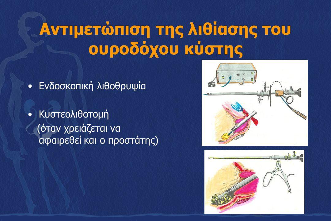 Αντιμετώπιση της λιθίασης του ουροδόχου κύστης Ενδοσκοπική λιθοθρυψία Κυστεολιθοτομή (όταν χρειάζεται να αφαιρεθεί και ο προστάτης)