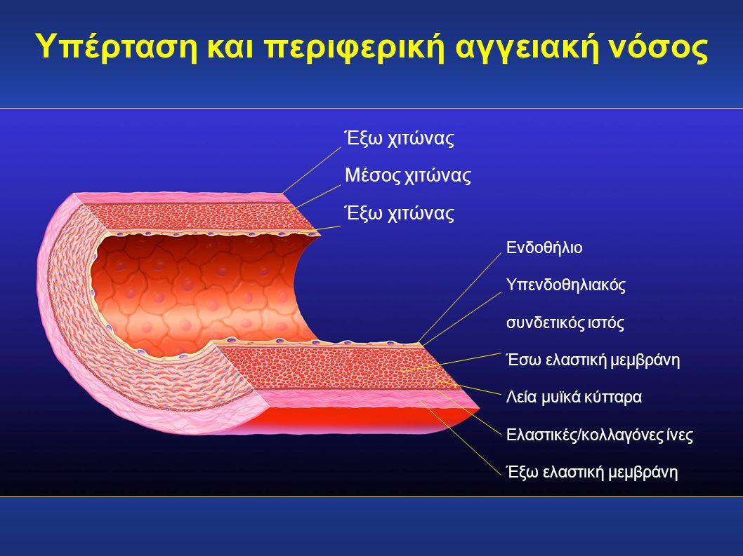 Έξω χιτώνας Μέσος χιτώνας Έξω χιτώνας Ενδοθήλιο Υπενδοθηλιακός συνδετικός ιστός Έσω ελαστική μεμβράνη Λεία μυϊκά κύτταρα Ελαστικές/κολλαγόνες ίνες Έξω
