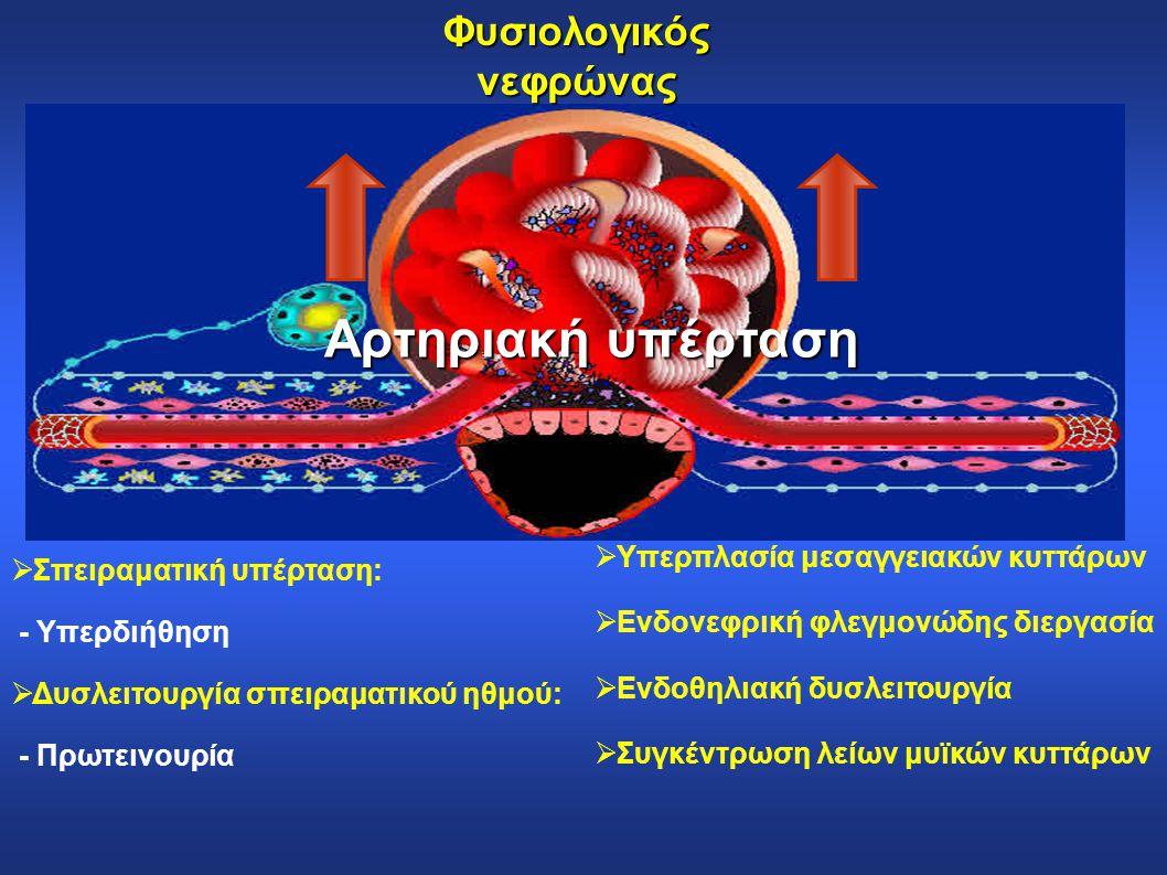 Φυσιολογικός νεφρώνας  Σπειραματική υπέρταση: - Υπερδιήθηση  Δυσλειτουργία σπειραματικού ηθμού: - Πρωτεινουρία  Υπερπλασία μεσαγγειακών κυττάρων 