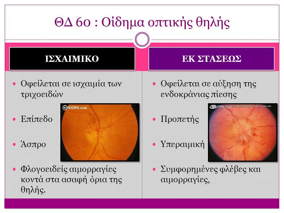 ΙΣΧΑΙΜΙΚΟ ΕΚ ΣΤΑΣΕΩΣ Ετερόπλευρο ΟΟ  πολύ ελαττωμένη Οριζόντια ημιανοψία Μετά 1 μήνα  ατροφική, λευκή και ανάγγεια θηλή Αμφοτερόπλευρο ΟΟ  επί μακρόν καλή μέχρι να επέλθει ατροφία του οπτικού νεύρου από την πίεση ΘΔ 60: Οίδημα οπτικής θηλής