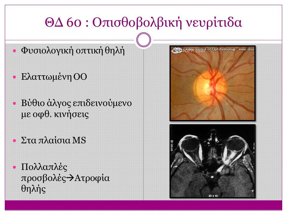 ΘΔ 61 : Ατροφία οπτικού νέυρου Χλωμή έως λευκή Χωρίς τριχοειδή Επίπεδη Με σαφή όρια Αίτιο  Κάθε ατροφική, ισχαιμική ή συμπιεστική βλάβη από τα γαγγλιακά κύτταρα ως το έξω γονατώδες σώμα