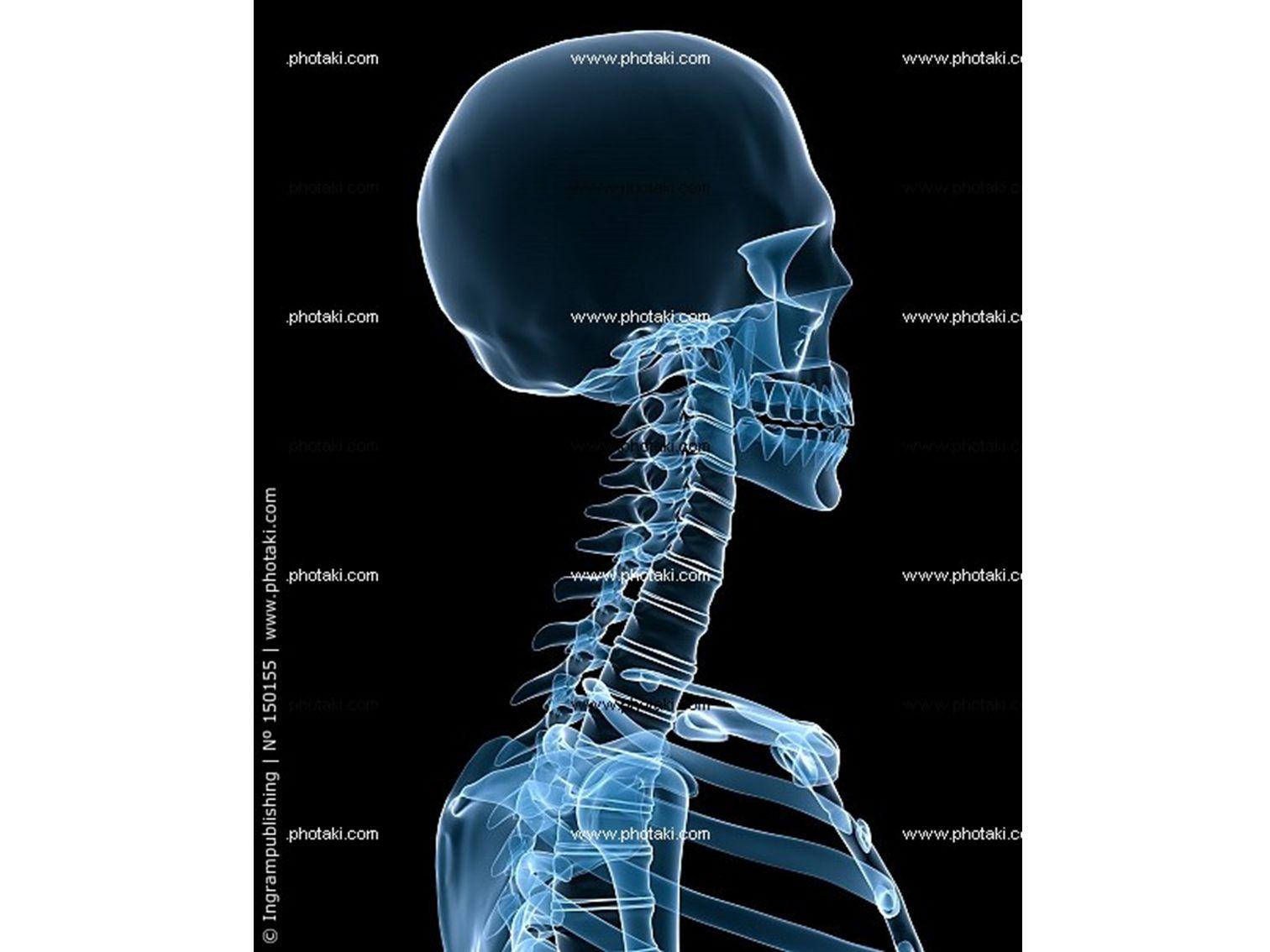 1) Οστά του εγκεφαλικού κρανίου (8 οστά, 4μονά και 2 διπλά και συμμετρικά).